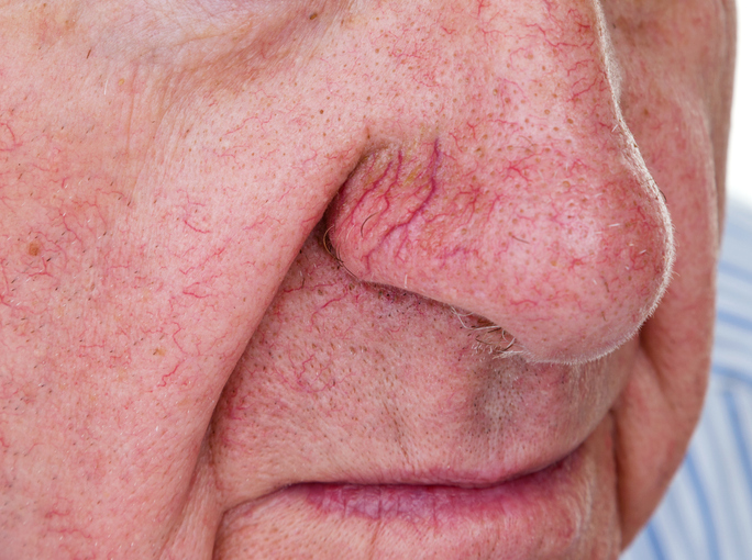 get rid of spider veins on your nose